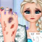 Elsa Foot Injured